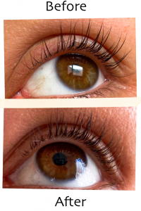 before-after Xlash